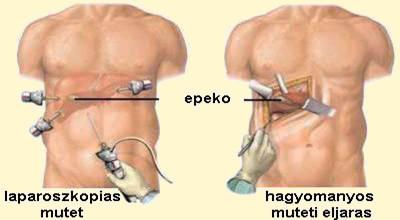 magas pulzusszámú magas vérnyomás magas vérnyomás késleltetett stádium