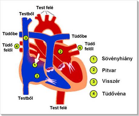 bal pitvari magas vérnyomás mi ez