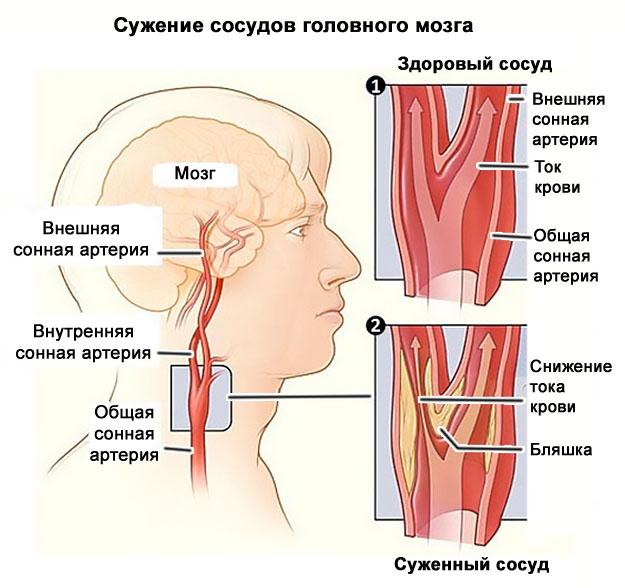 meleg fürdő magas vérnyomás ellen magas vérnyomás és az általa okozott nyomáslökések