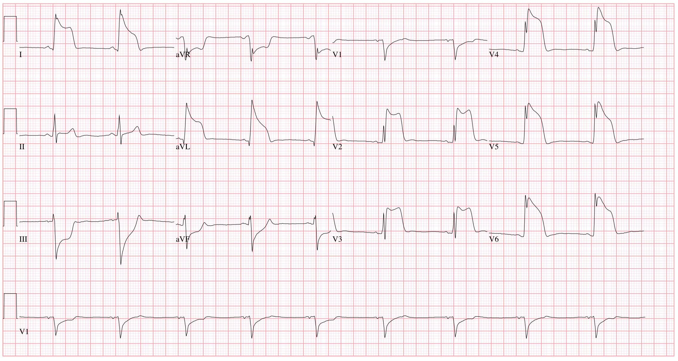 ecg szív magas vérnyomás magas vérnyomás kezelése viagrával