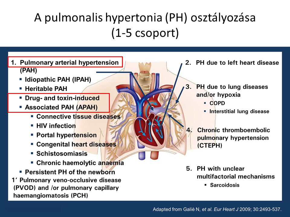 pulmonalis vénás hipertónia magas vérnyomás kezelése 3 evőkanál