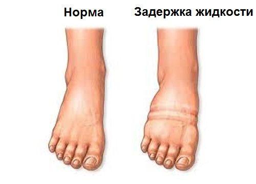 Pajzsmirigybetegség miatt is lehet ödémás a lába