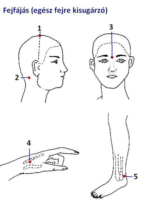 panzió hipertónia a csipkebogyó előnyei a magas vérnyomás esetén