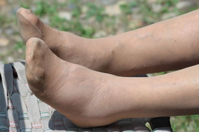 magas vérnyomás duzzadó lábak mit kell tenni magas vérnyomás és Thaiföld