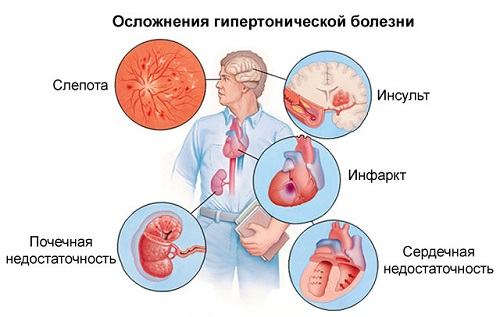 nyugtató hipertónia magas vérnyomás kezelés cseh köztársaság