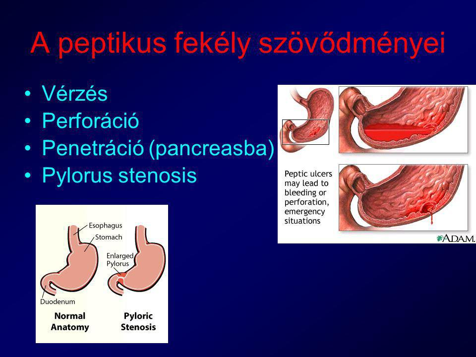 Gyomorfekély