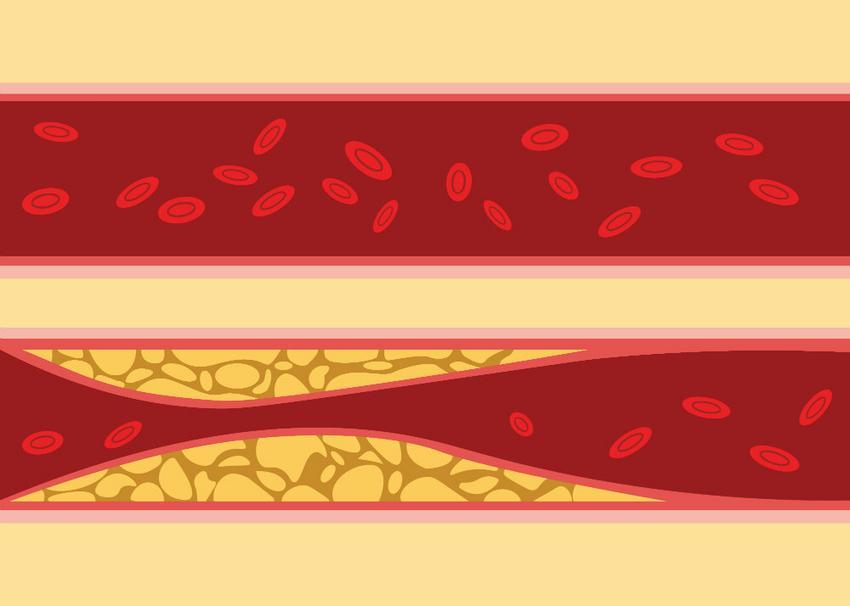 magas vérnyomás esetén a vér vastag