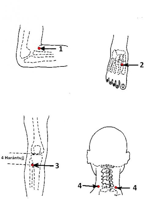 pontok a füleken magas vérnyomás esetén magas vérnyomás egy férfiban hogyan kell kezelni