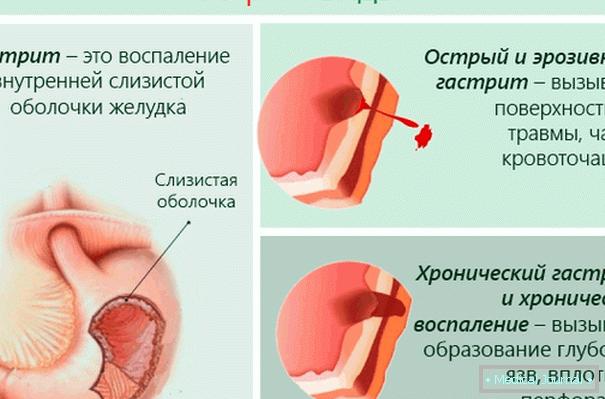 magas vérnyomás és a férfiak egészsége