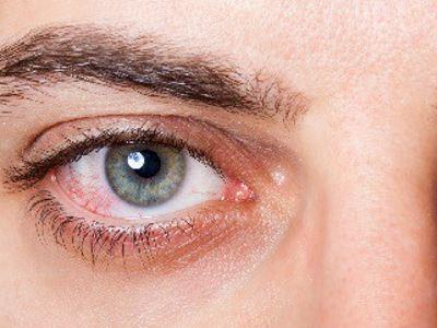 magas vérnyomásban szenvedő szemek