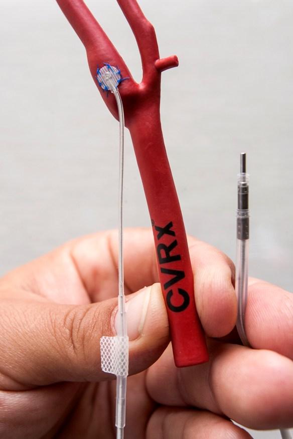 magas vérnyomás pacemakerrel