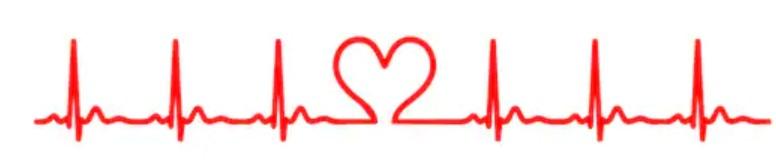 EKG a magas vérnyomásban végzett testmozgással