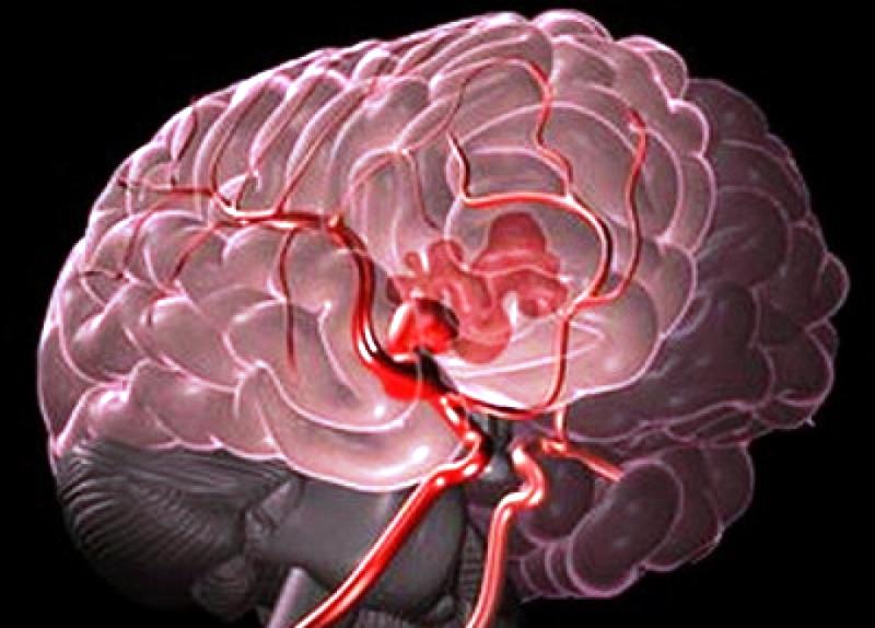 magas vérnyomás okozta agyi vérzés 5 recept a magas vérnyomás ellen