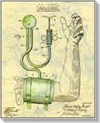 kompressziós harisnya és magas vérnyomás esetén