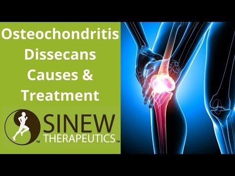 hipertóniás osteochondrosis osteochondrosis kezelése magas vérnyomás és torna