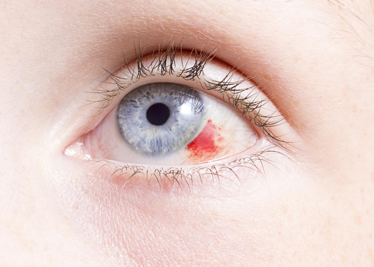 repedt erek a szem magas vérnyomásában