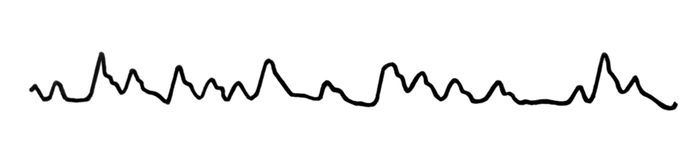 Morgagni-Adams-Stokes szindróma