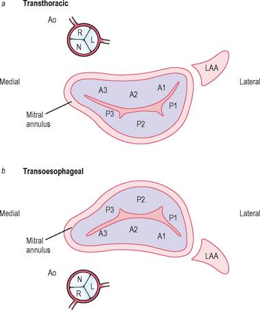 Tünetektől az echokardiográfiáig. Ismerjük fel hatékonyabban – nem csak méréssel – a hipertóniát