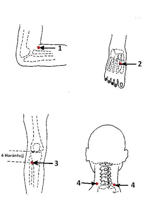 akupunktúrás magas vérnyomás