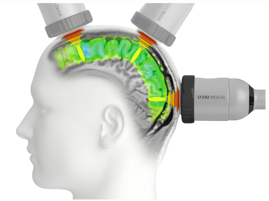 hipertóniával edzhet a szimulátoron gyógyszer szívelégtelenség és magas vérnyomás kezelésére