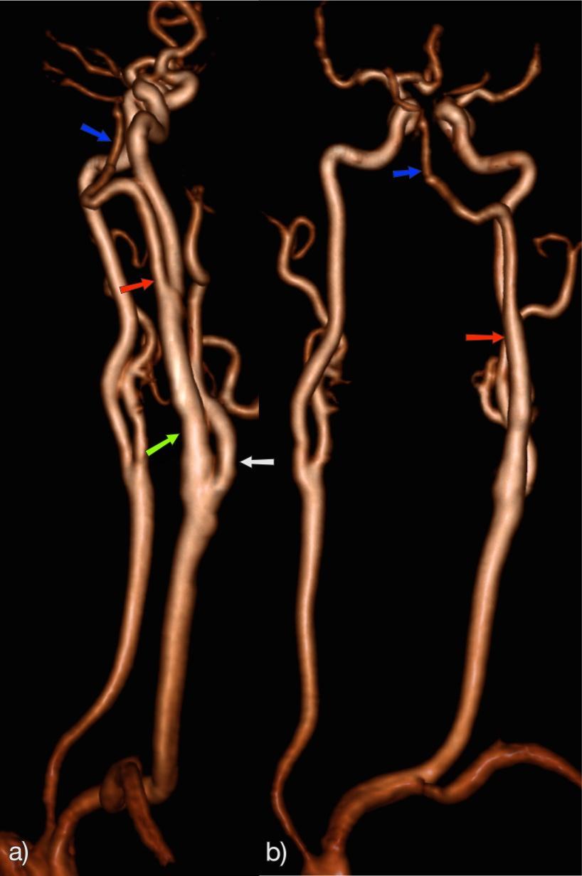 Fókusz - Vérnyomásszabályozó gyógynövények
