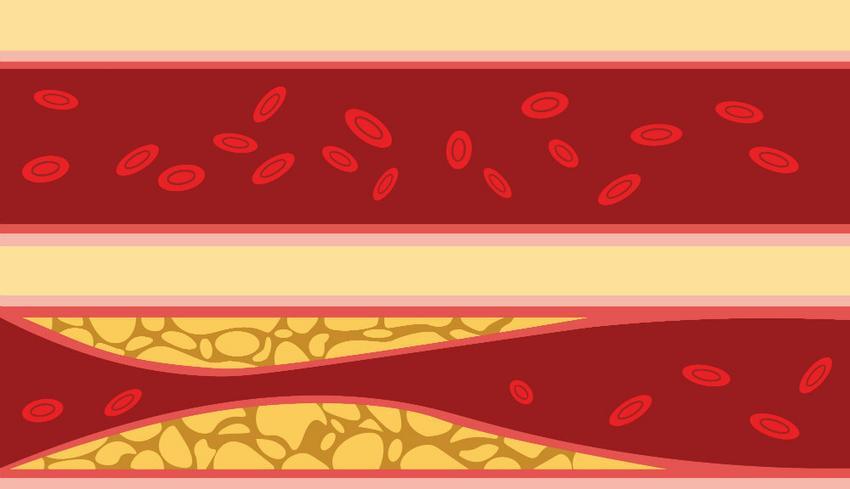 magas vérnyomás és pilates magas vérnyomás fájdalom a jobb oldalon