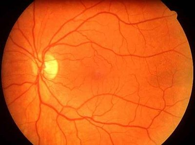 magas vérnyomás arca vörös életmód 3 fokú hipertóniával