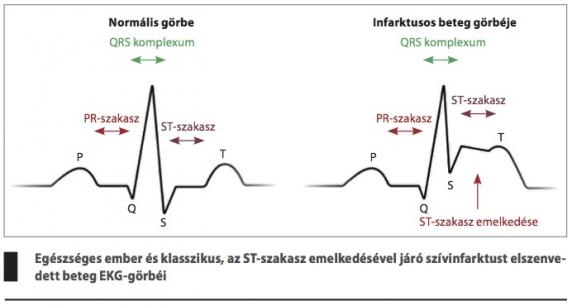 magas vérnyomás és a szívizom változásai ekg-n