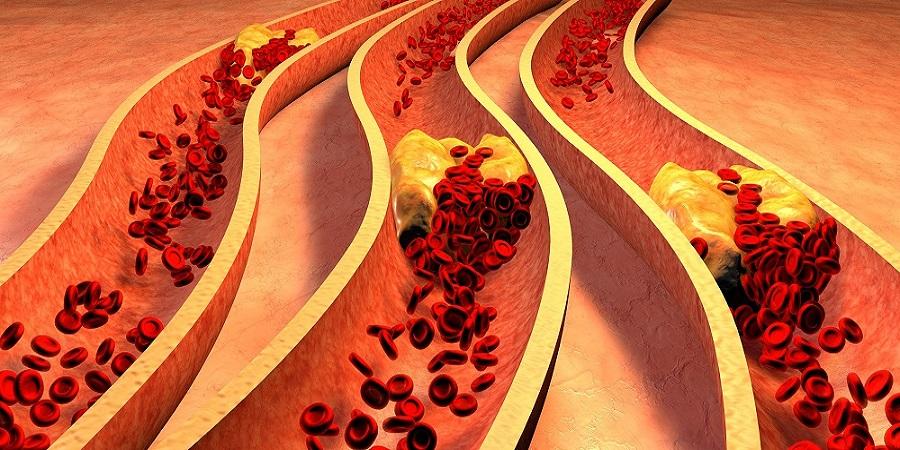 magas vérnyomás és szívkoszorúér-betegség amit a magas vérnyomás okoz