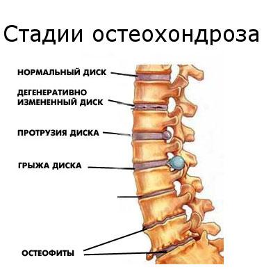 osteochondrosis hipertónia gyakorlása