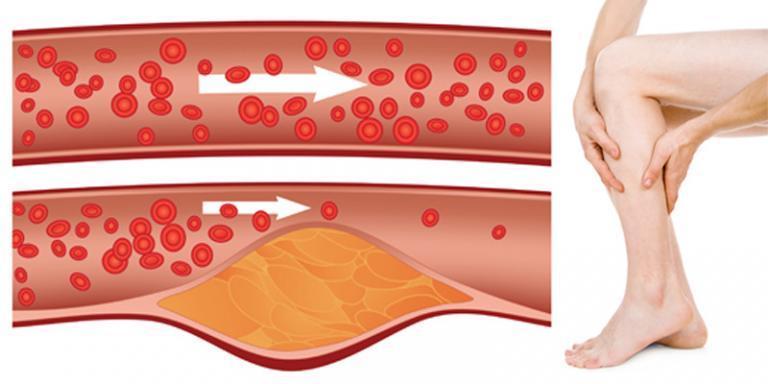 magas vérnyomás és homályos látás magas vérnyomású sportok