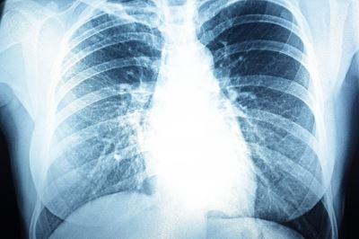 hogyan és hogyan kell kezelni a pulmonalis hipertóniát
