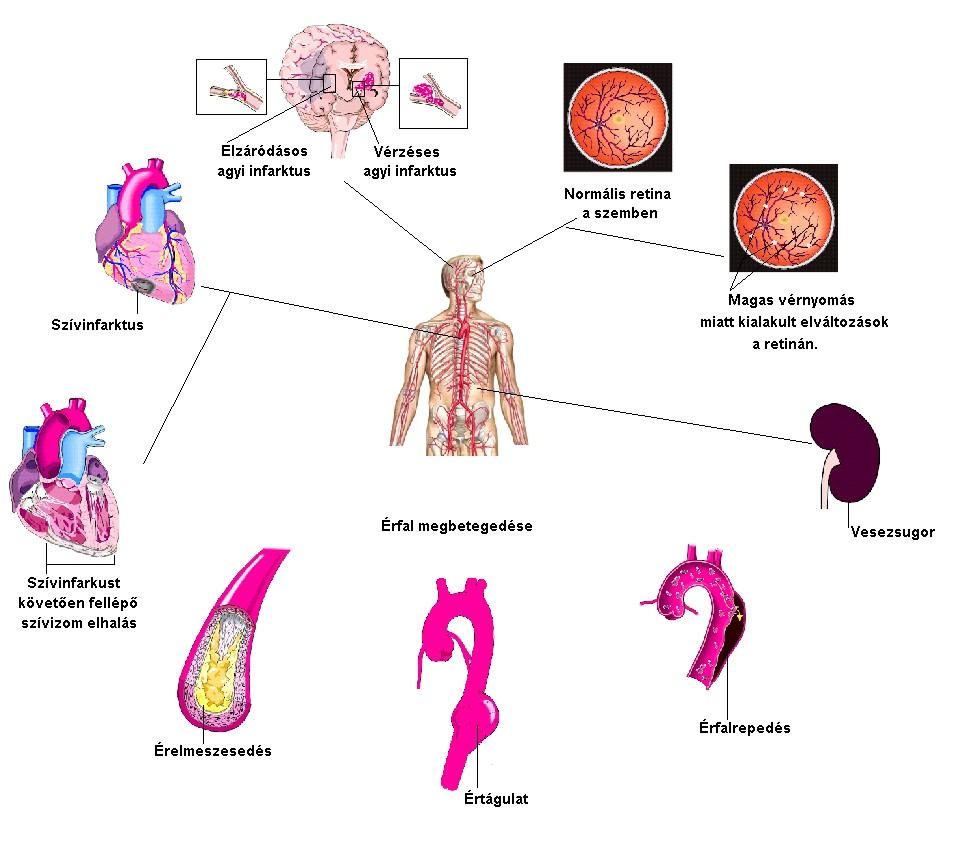 ciklikusan magas vérnyomás esetén agyi magas vérnyomás az