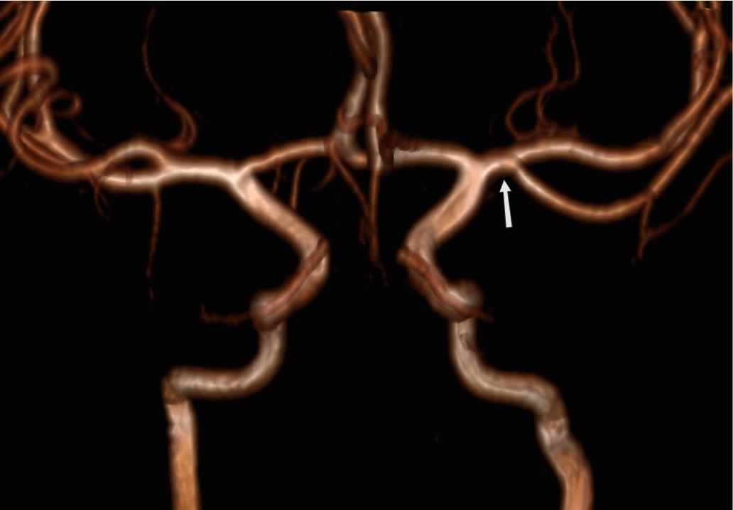 hipertóniával összezúzza a szívet hogy a rossz szokások hogyan befolyásolják a magas vérnyomást