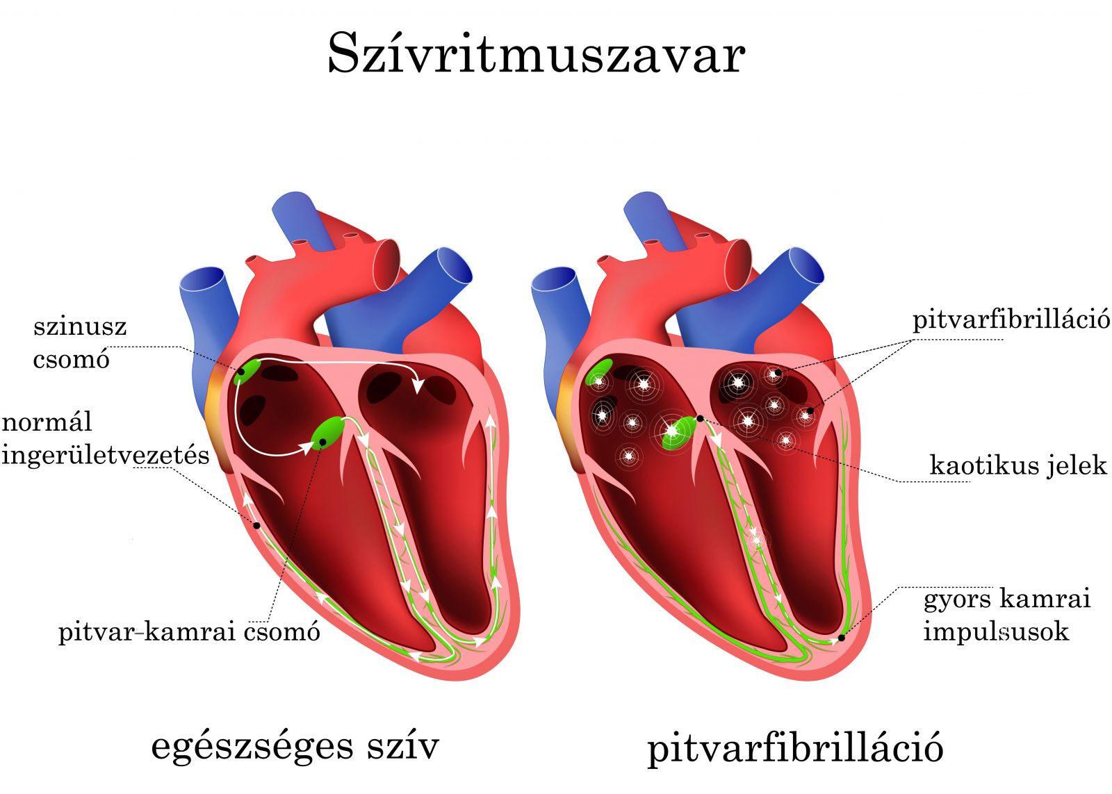 Szívritmuszavar: pajzsmirigy és diabétesz is okozhatja