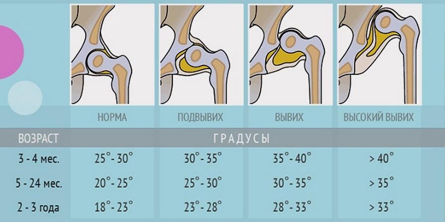 lehetséges-e hipertóniával felhúzni a vízszintes sávot a prosztata magas vérnyomása