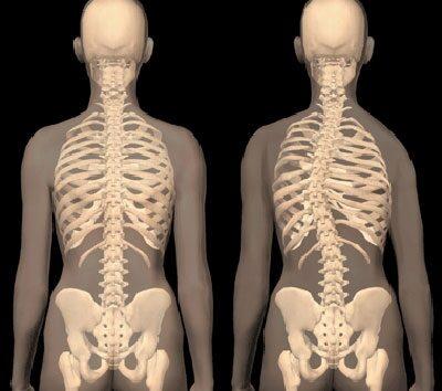 magas vérnyomás a gerinc sérvével