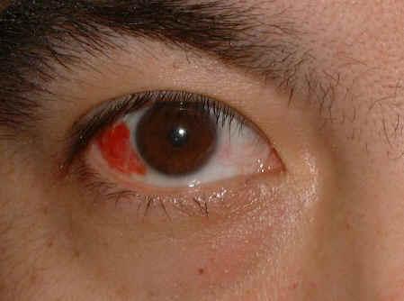 magas vérnyomás esetén a szem vörös