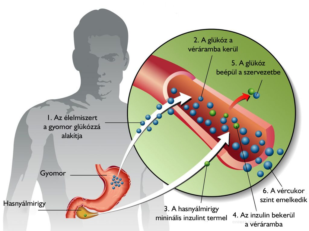Minta menü a 2-es típusú cukorbetegek számára, Az aceton diabéteszes eredete